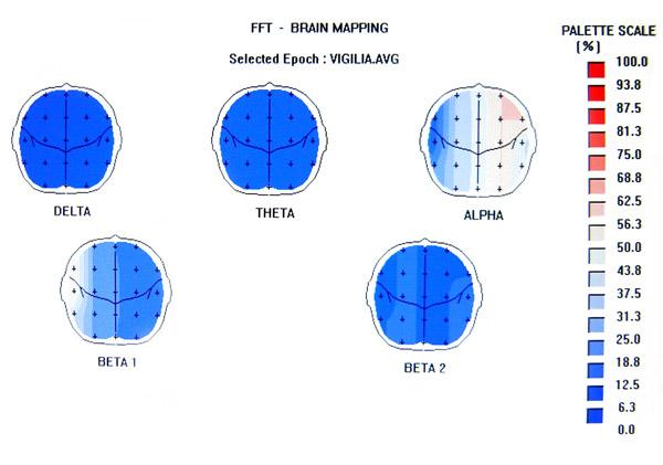 Otoencefalografia con mapeo cerebral.